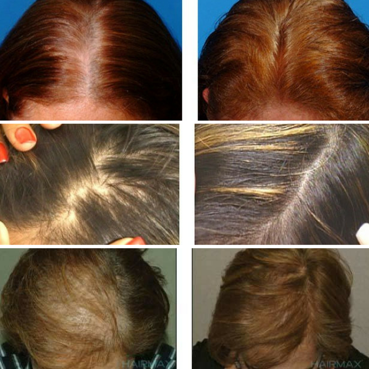 hair regrowth for women before & after