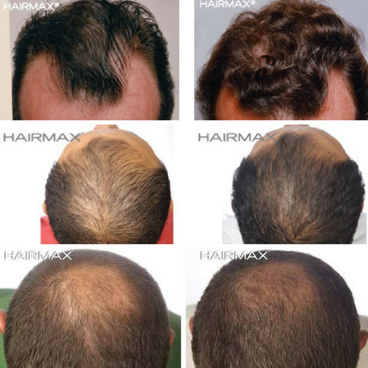 hair regrowth for men before & after